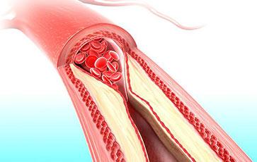 Rigidez arterial